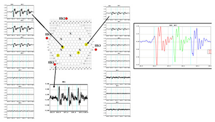 Figure 4. New Methods. Diagnostics of CPS Control Rod in Case of Movement in the Normal Mode